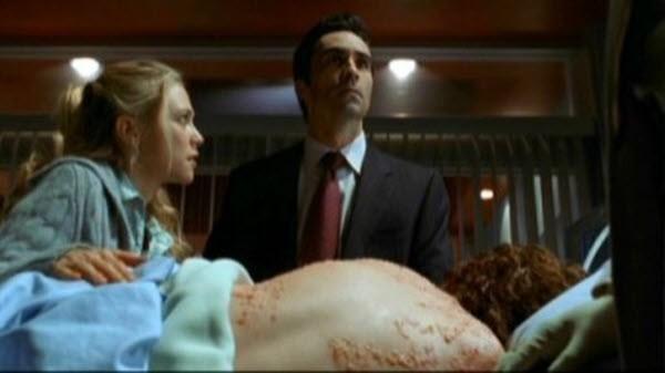 House M.D. - Season 1 Episode 13: Cursed